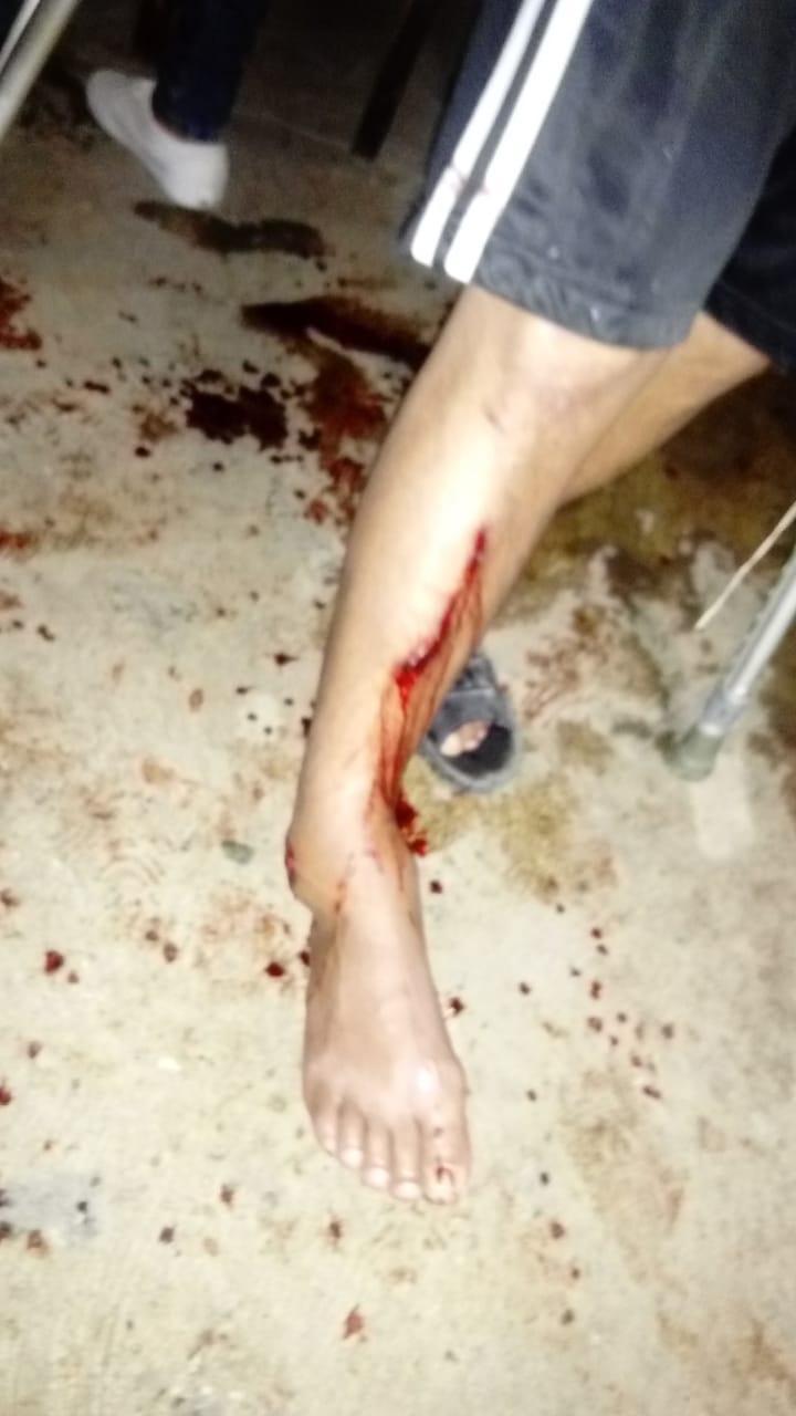 Se quebró una pierna