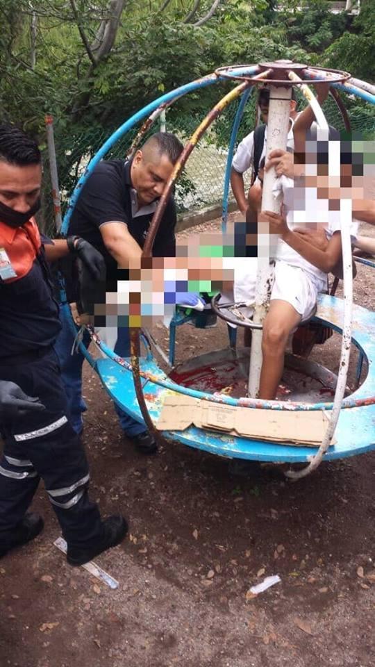 Niño se accidenta en juego Puerto Vallarta