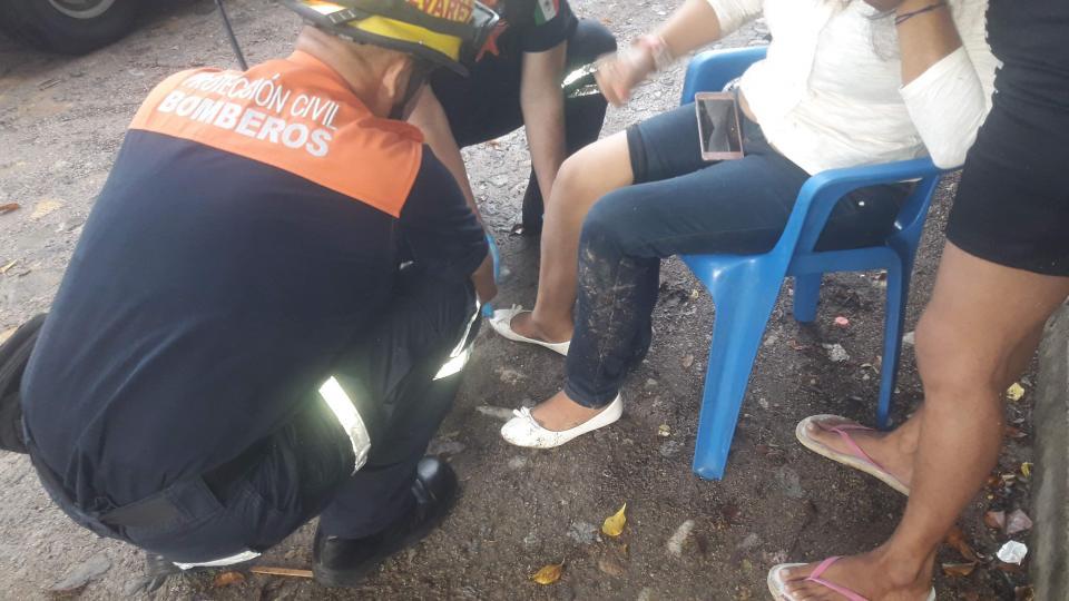 """""""Broncuda"""" mujer se  fracturó un tobillo"""
