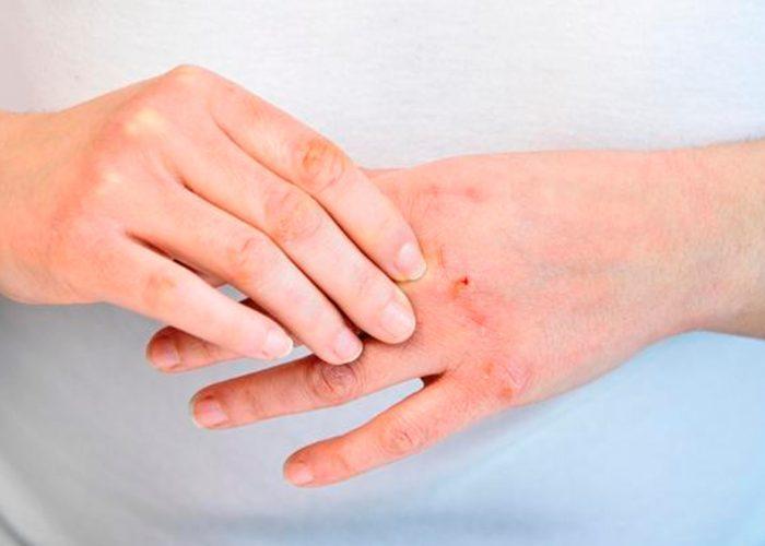 ¿Cómo evitar resequedad en la piel por uso de gel antibacterial?