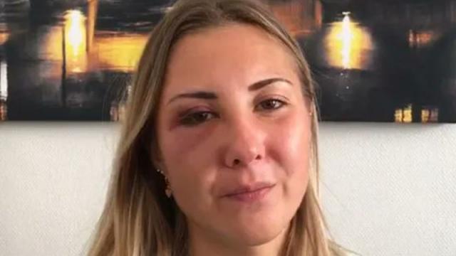 Elizabeth mujer agredida en Francia por llevar falda