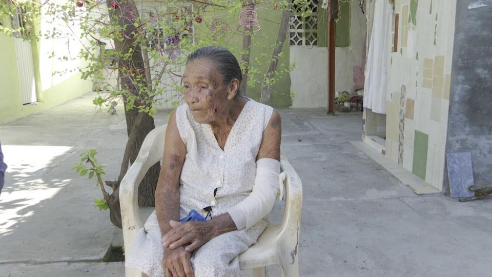 Anciana agredida por unos policías
